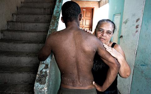 negro vítima de tortura